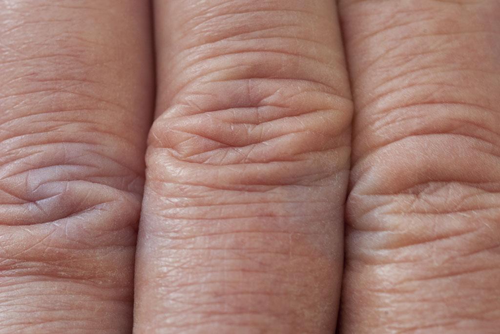 Finger_details