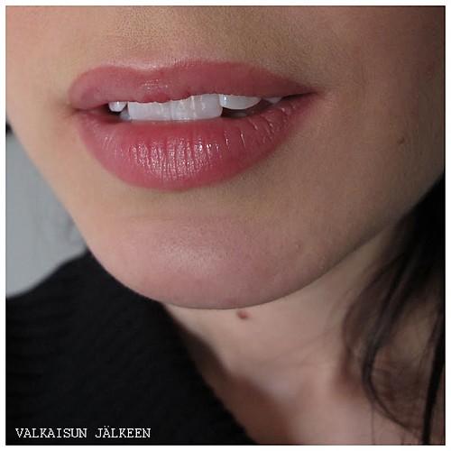 414_hampaat_jalkeen1